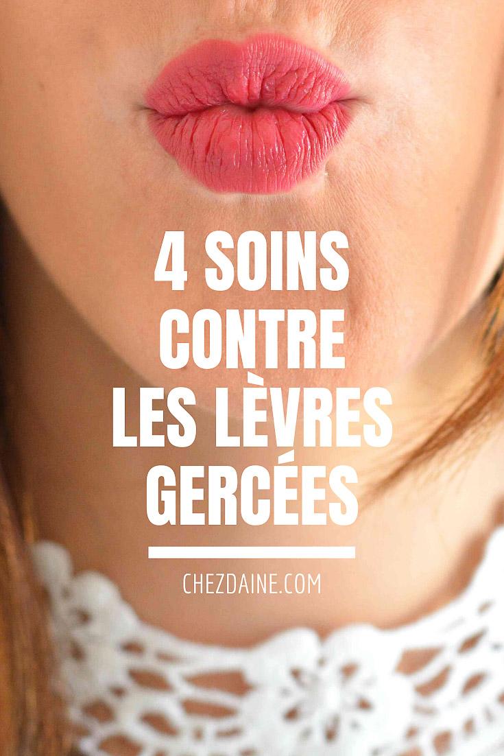 solutions lèvres gercées